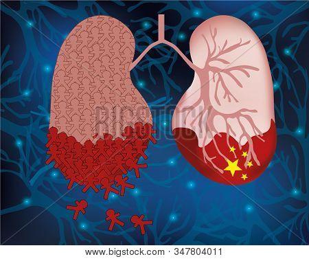 Coronavirus Disease Attacks The Respiratory Tract. The Outbreak Of The Deadly Coronavirus In China 2