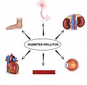 Diabetes mellitus affected areas. Diabetes affects nerves kidneys eyes vessels heart and skin. poster