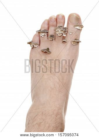 dirty infected foot mycosis on white background