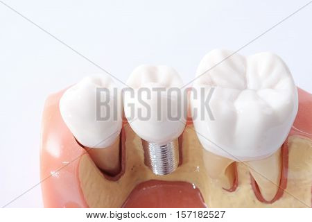 Generic Dental Teeth Model
