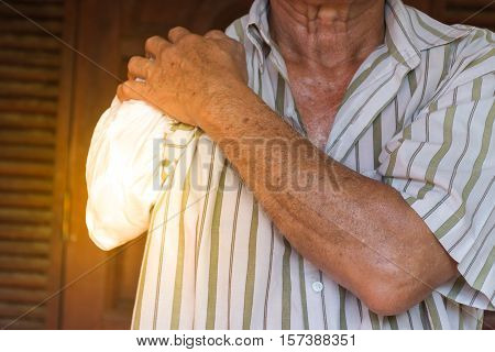 Asia Elderly Man With One Arm And Arm Prosthetic