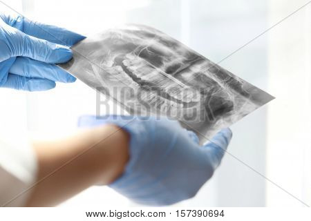 Dentist in gloves teaching radiograph on light background