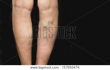 The varicose veins on a legs of old woman on black