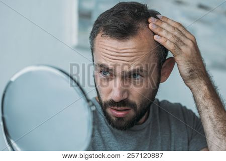 upset middle aged man with alopecia looking at mirror, hair loss concept poster