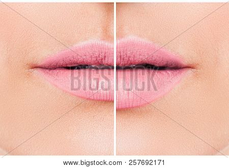 Woman Lips Before And After Lip Filler Injections. Fillers. Lip Augmentation Beautiful Perfect Lips.