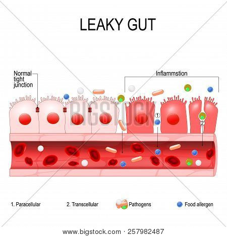 Leaky Gut. Cells On Gut Lining Held Tightly Together. In Intestine With Celiac Disease And Gluten Se