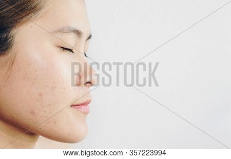 Half Face Of Asian Woman Has Problems With Skin On Her Face. Conceptual Shot Of Problems With Acne A