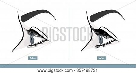 Female Eye Before And After Eyelash Extension. Comparison Of Natural And Volume Eyelashes. Side View