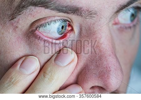 Closeup Of Human Eye That Is Red And Irritated. Symptom Of Dry Eyes From Excessive Looking At The Mo