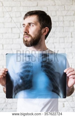 Young Bearded Man Holding X-ray Film Of Lungs And Heart In Front Of His Chest