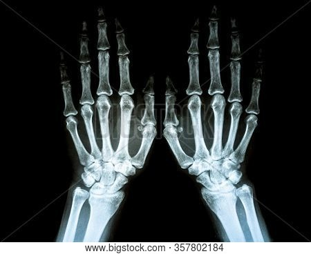 Film X-ray Of Rheumatoid Arthritis Hand Shows Joint Space Narrowing Of Hand . Rheumatoid Arthritis P