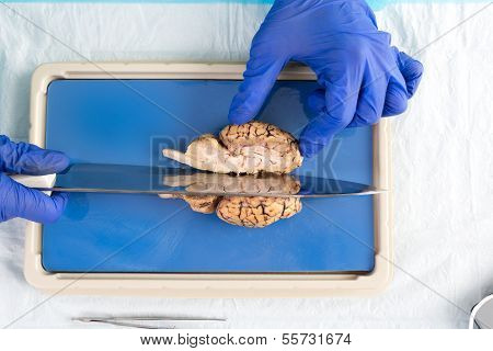 Student In A Laboratory Slicing A Cow Brain