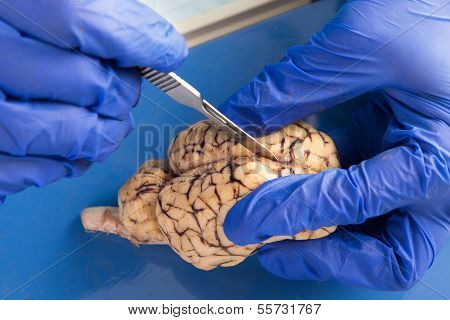 Student Using A Scalpel To Dissect A Cow Brain