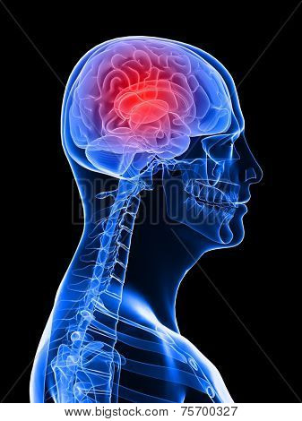 highlighted brain /headache