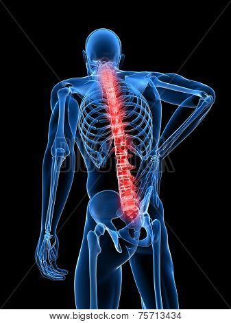 3d rendered medical x-ray illustration -  male backache