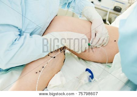 surgeon performs varicose veins correction operation on a patient at surgery clinic poster