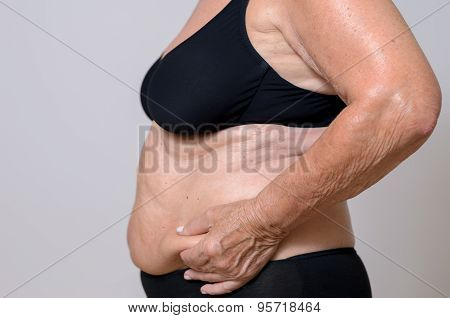 Elderly Overweight Lady Pinching Her Excess Fat