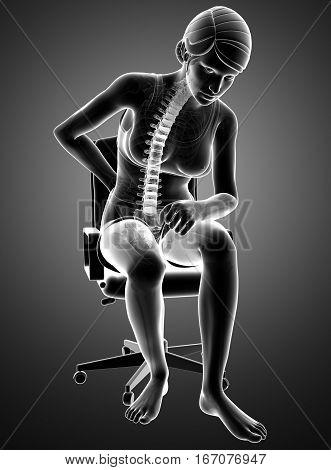 3d Illustration of Women Feeling the Back pain