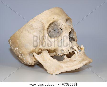 Real human skull used like teaching material
