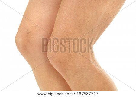 Female legs on white background, closeup