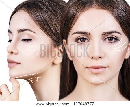 Young, beautiful woman with white arrows on her face. Face lifting concept.