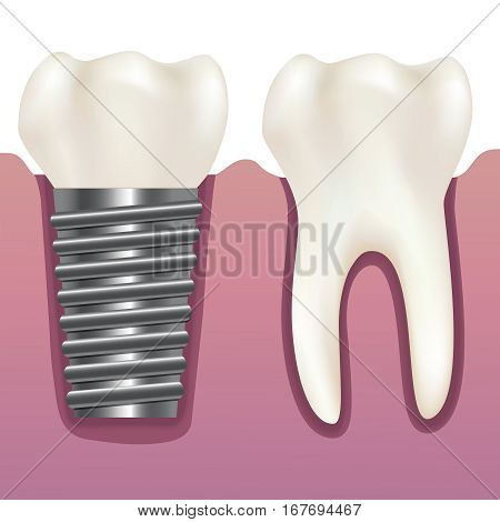 Realistic Human Tooth and Dental Implant Stomatology Health Care Concept. Vector illustration