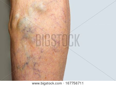Varicose veins on a female senior leg close up