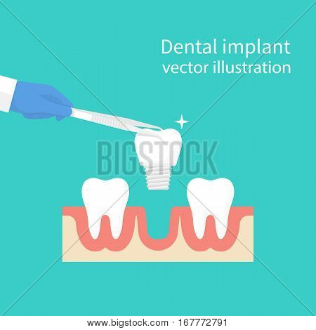 Dental implant. Dentist holding in hand tweezers sets of dentures. Medical equipment. Tooth treatment. Vector illustration flat design. Isolated on background. Stomatology concept.