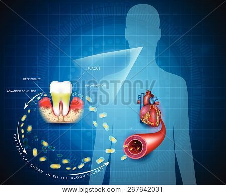 Gum Disease Inflammation Bacteria Can Enter In To The Blood Stream An Affect Heart.  Periodontitis D