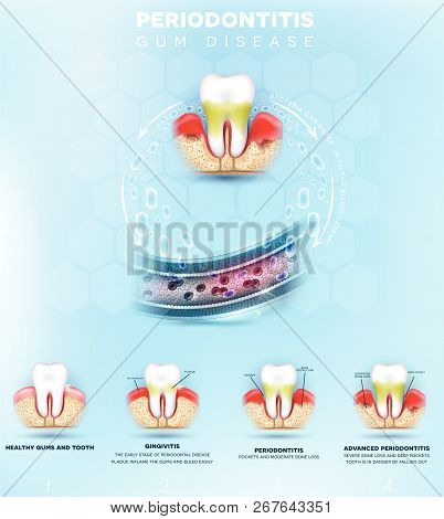Periodontitis Formation, Inflammation Of The Gums Bacteria Can Enter In To The Blood Stream And Init