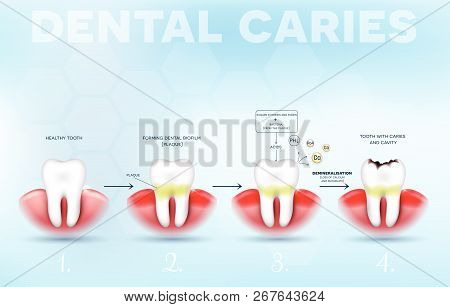 Tooth Decay, Dental Caries Formation Detailed Diagram, From Healthy Tooth Till Decay, Dental Plaque,