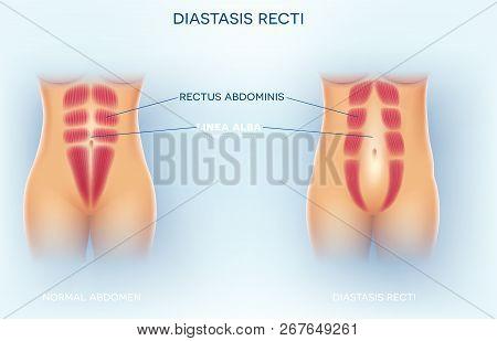 Diastasis Recti Also Known As Diastasis Rectus Abdominus Or Abdominal Separation, It Is Common Among