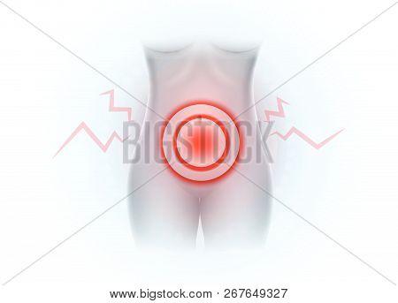 Female Lower Abdominal Pain, Pelvic Pain On White Background