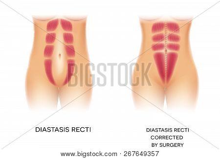 Diastasis Recti Also Known As Diastasis Rectus Abdominis Or Abdominal Separation, It Is Common Among