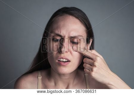 Acne Pimple Skin Blemish Spot Skin Care Girl. Young Displeased Woman Discovers Large Pimple On Her F