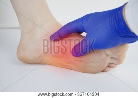 An Orthopedic Doctor Examines A Woman's Leg. Heel Pain, Tendon Stretching, Inflammation, Heel Spur.
