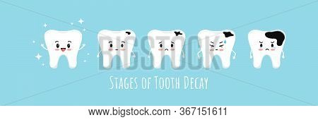 Stages Of Emoji Tooth Decay Icon Set. Cute Kawaii Teeth On Different Stages Of Dental Caries Develop