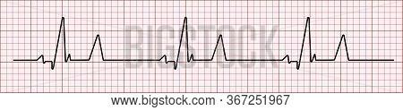 Heart Rhytm. Electrocardiogram. Heartbeat. Heartbeat Line. Vector Illustration.