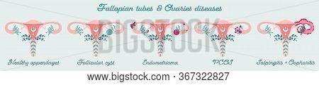 Women Health - Fallopian Tubes And Ovaries Disorders - Pcos, Endometrioma E.t.c. Gynecological Disea