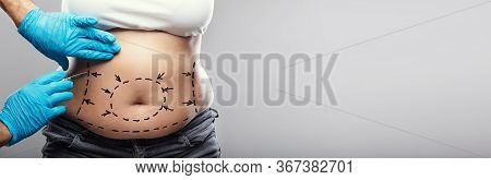 Liposuction Abdominoplasty Plastic Surgery. Surgeon Holding Scalpel
