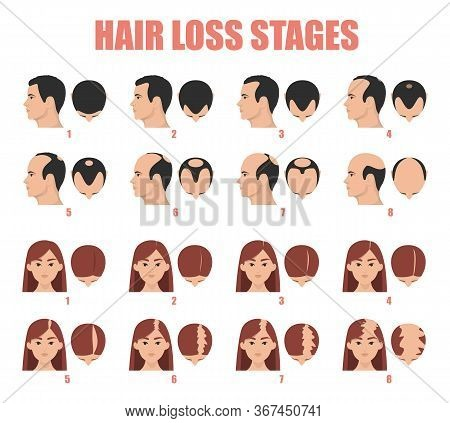 Hair Loss Stages Vector Isolated. Female And Male