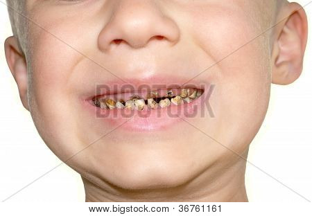 Calf's Teeth Decay Toothache Because Of Too Many Sugar In Food Dental Medicine