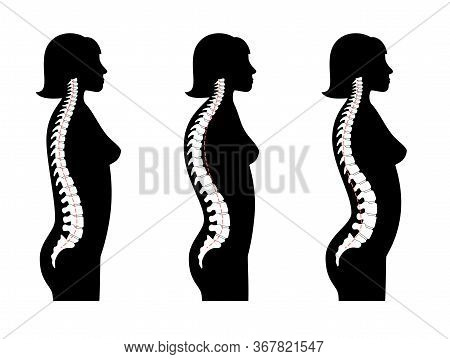 Woman Spinal Deformity Flat Vector Illustration. Kyphosis, Lordosis Of Spine. Diagram With Spine Cur