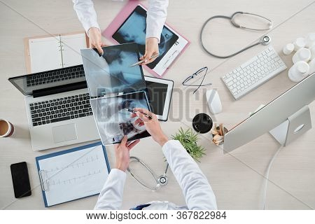 Pulmonologists Comparing Chest X-rays Of Sick And Recovered Patients