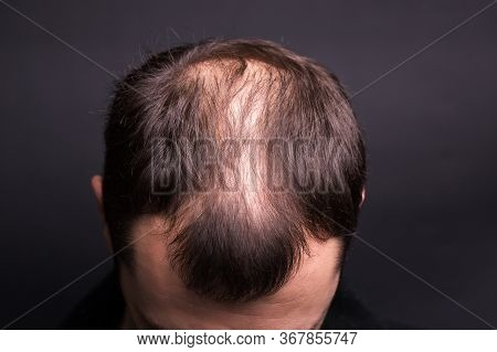 Male Head Close-up With Baldness. Studio Black Background.