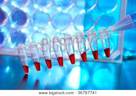 Sripe Of Plastic Tubes With Samples For Dna Analysis