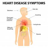 Heart Disease. Signs and Symptoms. Coronary artery disease (CAD) or ischemic heart disease (IHD). Also known as Atherosclerotic heart disease or atherosclerotic cardiovascular disease and coronary heart disease poster