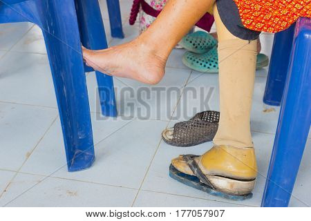 closeup asian old woman with wooden prostheses
