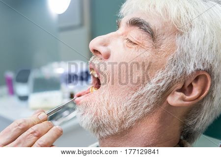 Elderly male at the stomatologist. Person with yellow teeth.