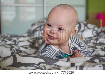 Portrait of cute baby boy with Down syndrome on the bed in home bedroom